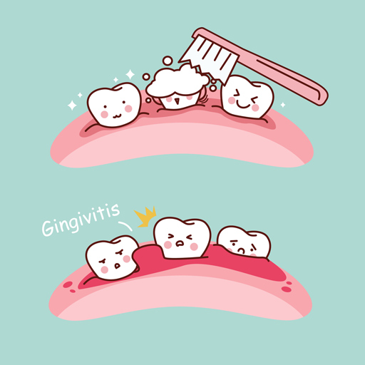 Taking Care of your 'Gum' Problems