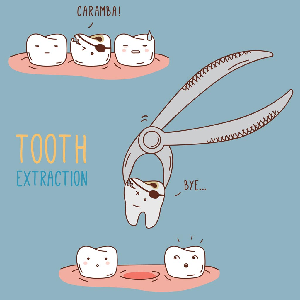 Tooth Extraction and Care Essentials