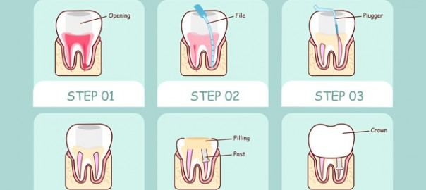 Root Canal treatment - 55065573