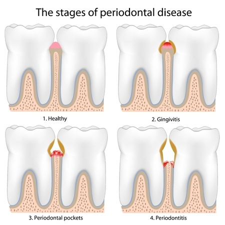 Periodontitis – Everything You Need To Know About this Serious Gum Infection