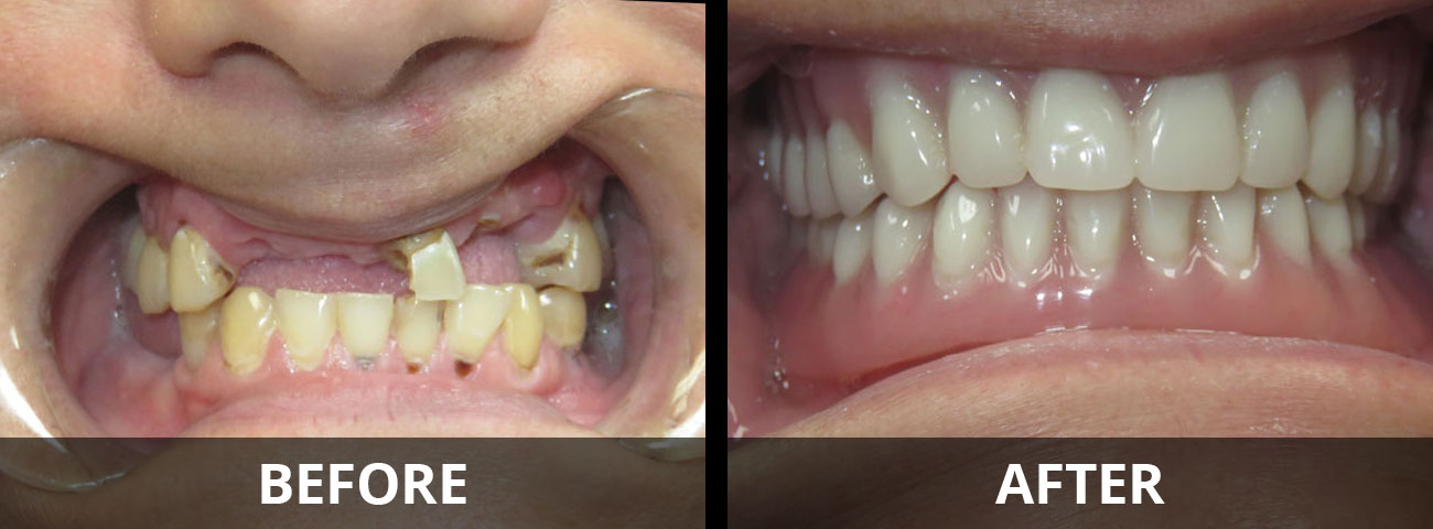 new-you-dentures-before-after-01