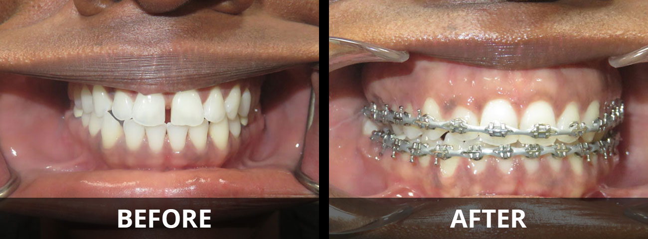 braces-before-after-01