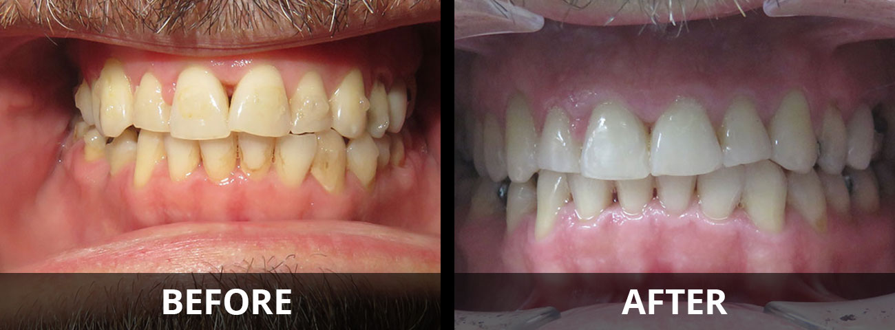 invisalign-before-after-01