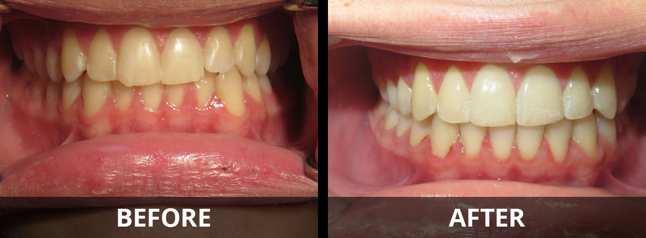 invisalign-before-after-02