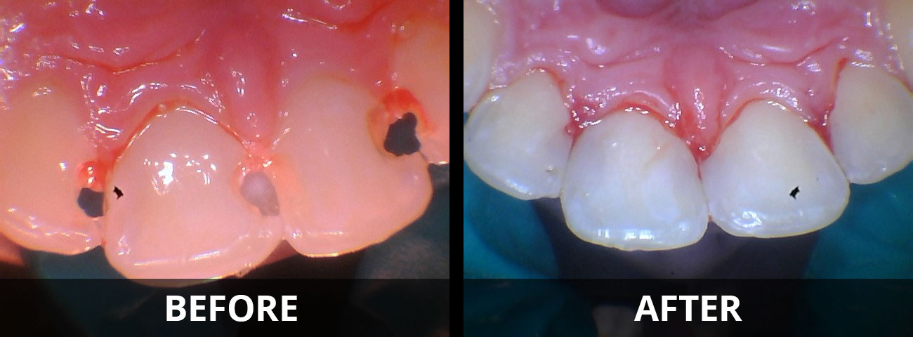 tooth-colored-resin-fillings-before-after-01