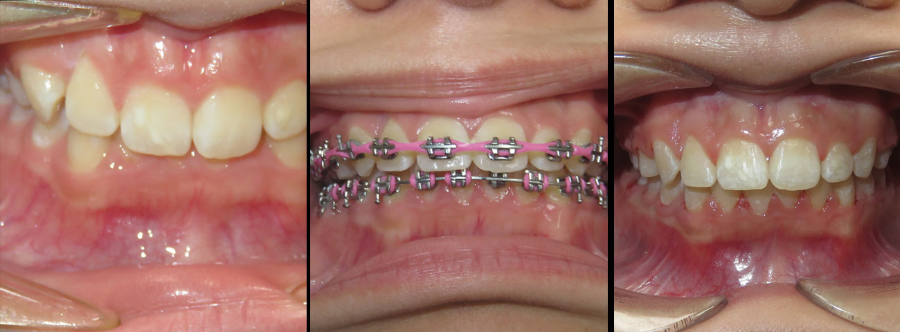 braces-before-after-02