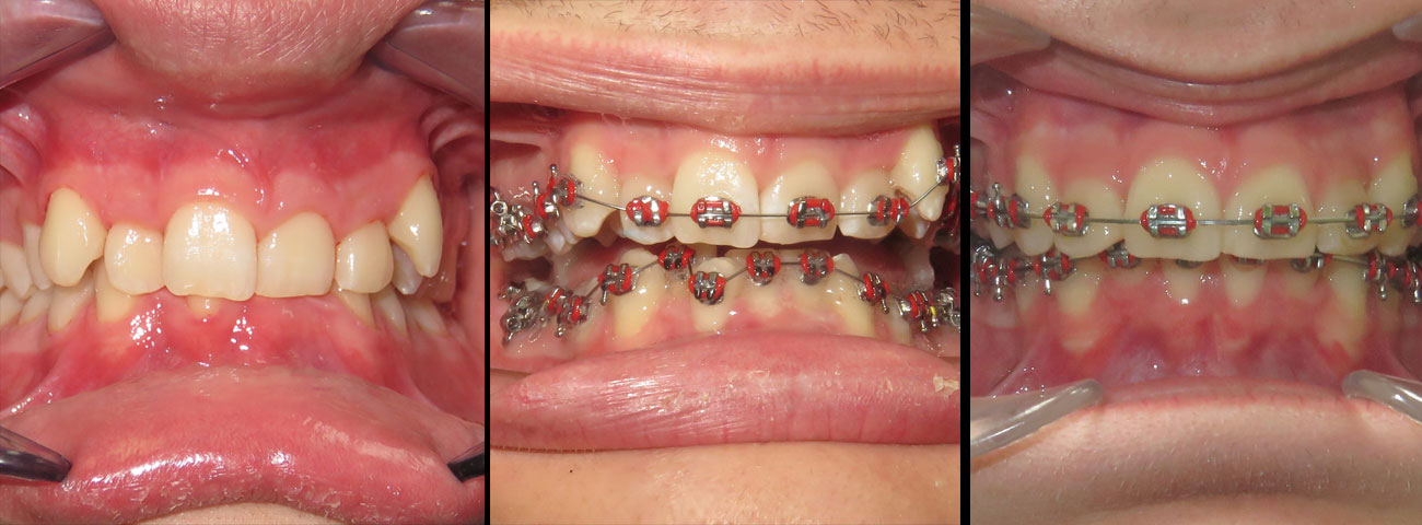 braces-before-after-03