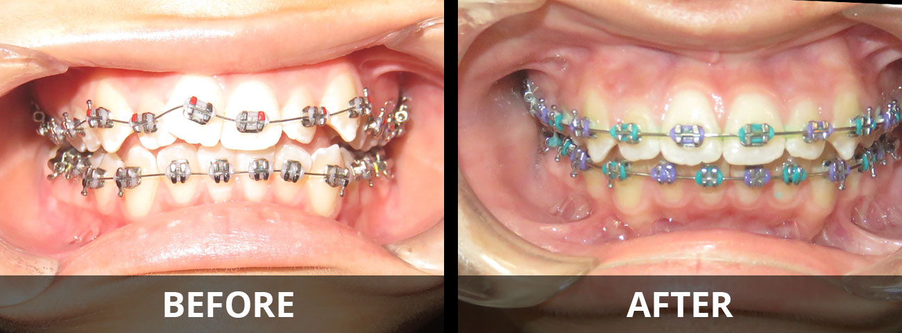 braces-before-after-04