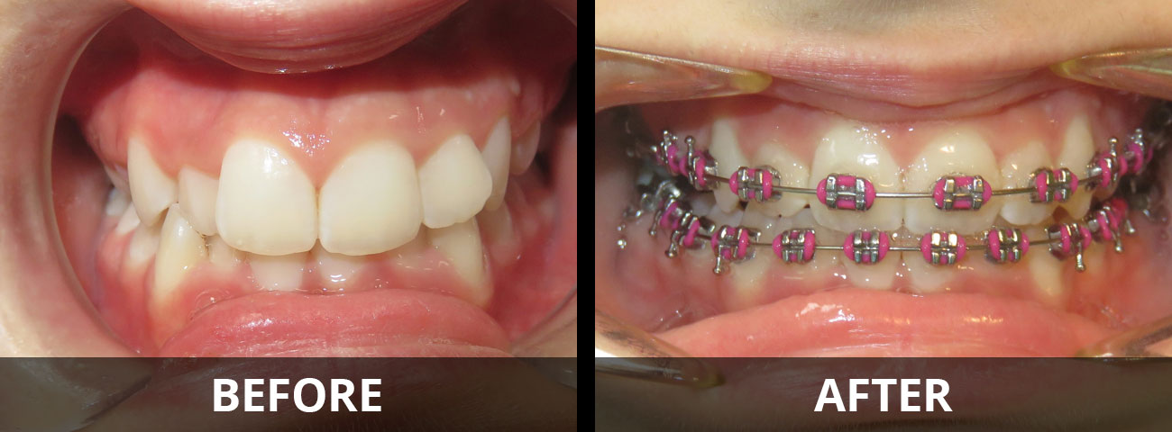 braces-before-after-05