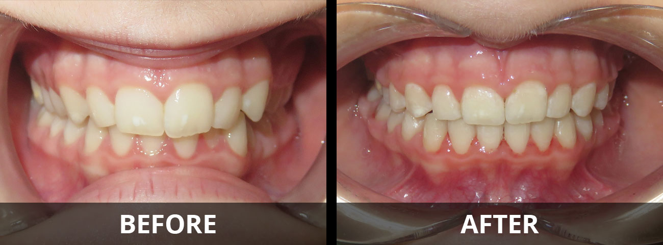 invisalign-before-after-03
