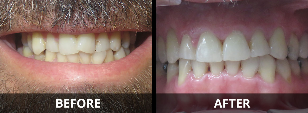 invisalign-before-after-04